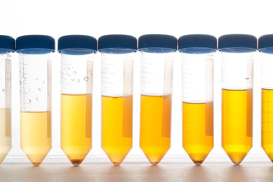 A cor da urina pode revelar doenças
