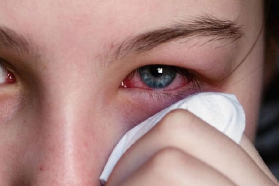 Primavera desencadeia conjuntivite alérgica