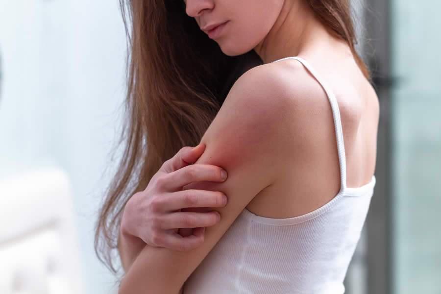 Como sintomas dermatológicos podem indicar baixa imunológica
