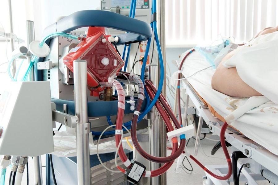 Máquina de oxigenação por membrana extracorpórea (Ecmo)